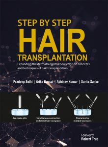 Our Book on Hair Transplant